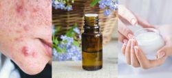 Bylinky proti akné - 10 tipů na účinné byliny!