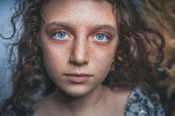 Babské rady na boj s akné - jak pečovat o aknózní pleť přírodně